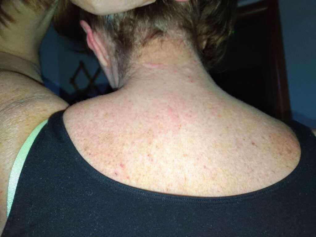 Bioderma Atoderm, migliore rimedio per pelle secca e irritata